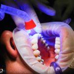 Zła sposób odżywiania się to większe niedobory w ustach oraz dodatkowo ich zgubę